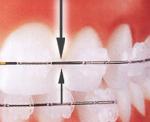 Valymas yra pabaigiamas specialiais vieno danties, tarpdančių šepetėliais